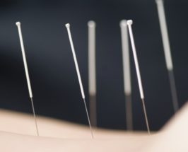 Would You Or Wouldn't You: Acupuncture School