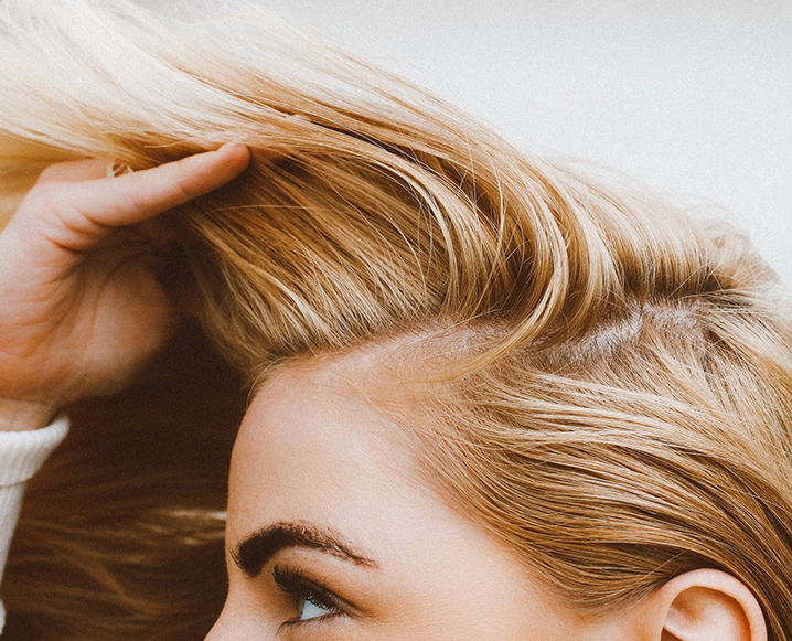 thinning hair holistic solutions