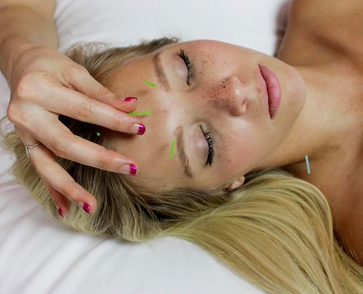 Acupuncture For PMS on face