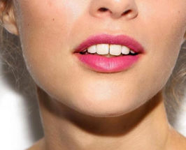 best products for chapped lips