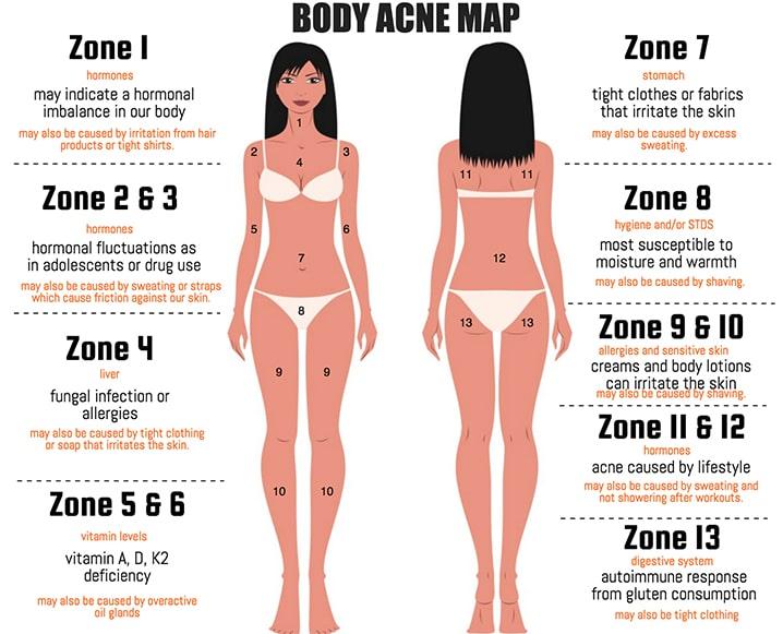 body acne map