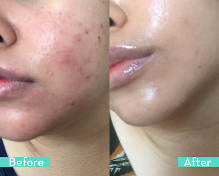 skincare before and after hum supplement Saved My Skin